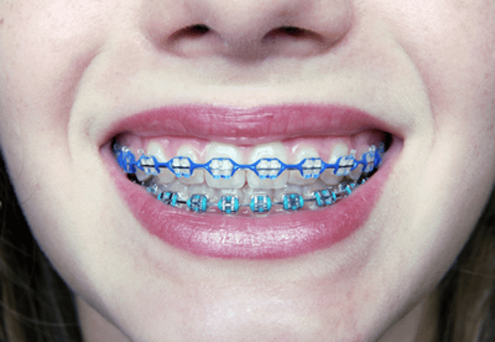 Braces: How Braces Work, Pain Relief, & Keeping Braces Clean